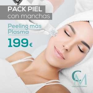 Pack piel con manchas: peeling con plasma en Sevilla