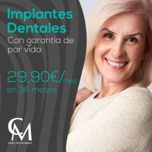 Implantes dentales en oferta en Sevilla