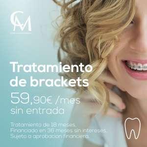 Ortodoncia con brackets en Sevilla en Clínica Montecarmelo